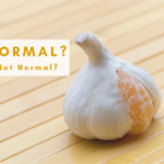 Normal vs. not-normal